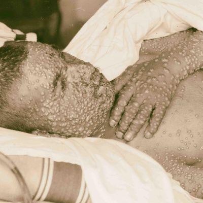 Rakkuloiden peittämä potilas vuoteessa.