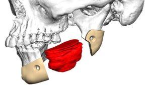 Kuvassa tietokonemallinnus potilaan kasvoista. Punaisella on merkitty alaleuassa sijaitseva kasvain sekä sen ympärillä leikkauskohtaa rajaavat beiget leikkausohjaimet. Kuva Helsingin yliopisto.