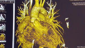 monitoreissa kuva sydämestä