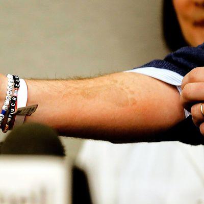Christopher O`Neill esitteli lehdistötilaisuudessa käsivarteensa painettua vastasyntyneen tyttären jalanjälkeä.