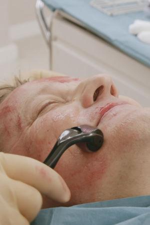 Toimittaja Risto Kuusisto makaa hoitopöydällä, kasvoissa näkyy verta.