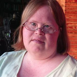 Kvinna med Downs symdrom