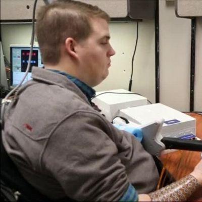 Uutisvideot: Halvaantunut mies voi käyttää kättään aivoistutteen avulla