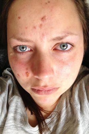 Jennifer Sandström visar upp sin dåliga hy.