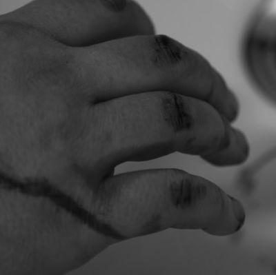 Blodig hand i lavoar.