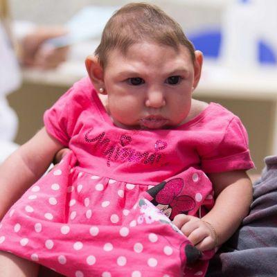 Muutaman kuukauden ikäinen tyttö vaaleanpunaisessa Minni Hiiri -mekossa.