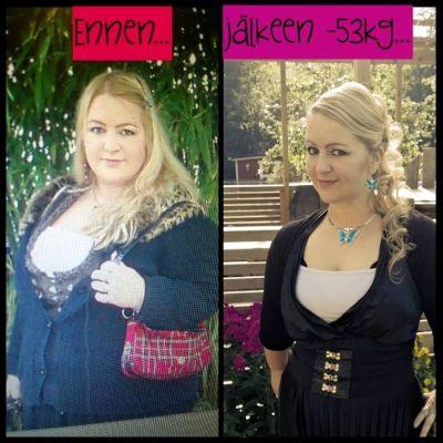 Anu Talus ennen ja jälkeen laihtumisen