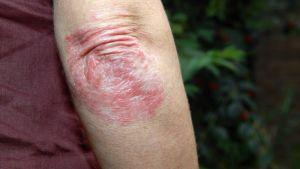 Armbågen är ett typiskt ställe för psoriasis