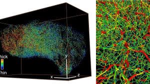 Tredimensionella bilder av blodkärl i cancervävnader. Tjocka blodkärl ses i rött, tunna blodkärl i blått och medeltjocka i grönt.