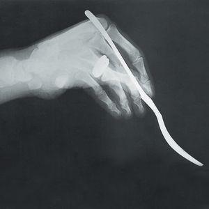 Röntgenkuva Tapio Wirkkalan Hopeasiipi-aterinta pitelevästä kädestä