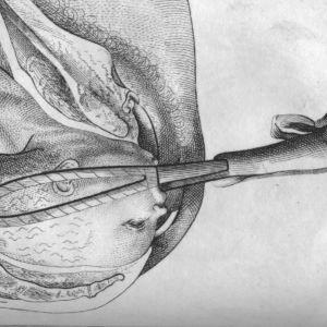 Historisk, tecknad bild: Tångförlossning 1792.