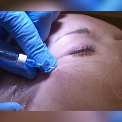 Läkare injicerar så kallad filler under huden för att skulptera kindben.