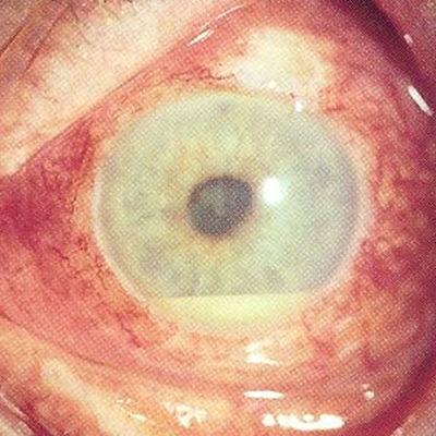 Sjukt öga, druvhinneinflammation