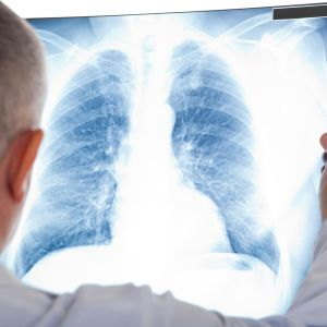 lääkäri tutkii röntgenkuvaa keuhkoista