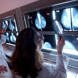 Lääkäri tutkivat rintakudosten röntgenkuvia.