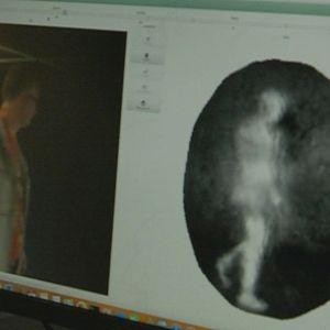 Argon-kameran skannerikuvassa näkyy vain valkoinen hahmo.
