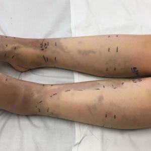 mustelmia ja tussimerkintöjä lapsen jaloissa