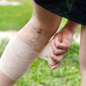 naisella suonikohjuja jaloissa