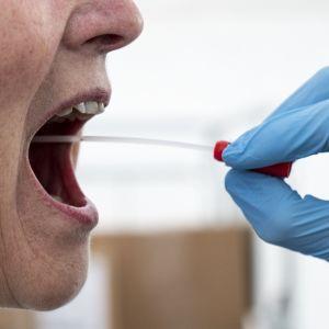 Lähikuva naisen auki olevasta suusta, josta lääkäri ottaa näytettä.
