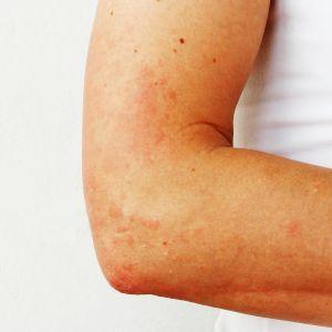 Kuvassa on aurinkoihottumaa ihmisen käsivarressa.