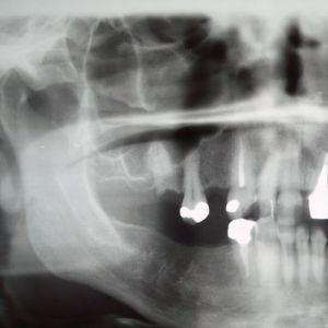 Röntgenkuva leuasta ja hampaista, joista osa on korvattu kullalla