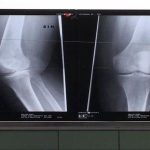 Nivel röntgenkuvassa
