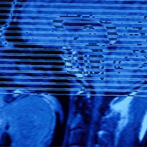 skannerikuva aivoista