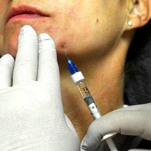 Restylane-injektiota laitetaan ihon alle.