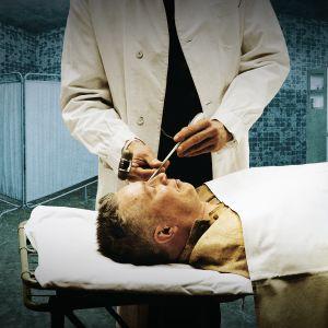 Potilas lobotomialeikkauksessa.