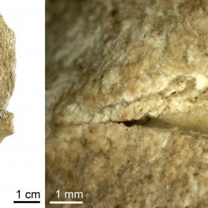 Kuva lonkkaluusta ja lähikuva vammasta, johon on hautautunut kivenkappale.