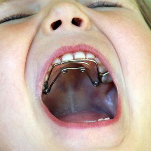 Lapsen suussa oikomiskoje.