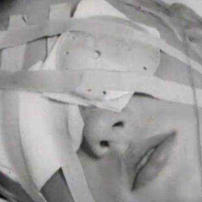 Tapaturmaisesti silmänsä loukannut poika (1953).