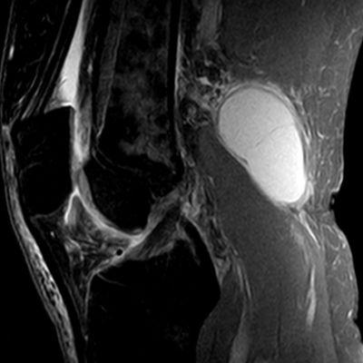 Magnetresonansbild av knä med Bakers cysta.