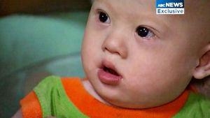 Gammy som övergavs av ett australiskt par på grund av Downs syndrom.