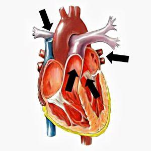 Hjärta i genomskärning