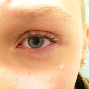 Tårar vid ett öga