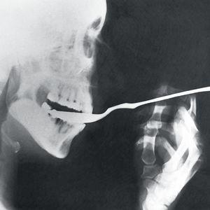 Röntgenkuva lusikasta suussa