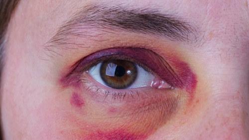silmät auki dating site