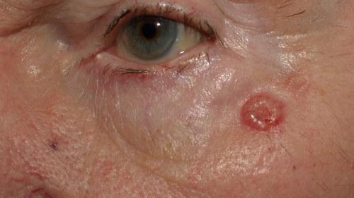 hudcancer i ansiktet bilder