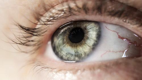 silmän oireet