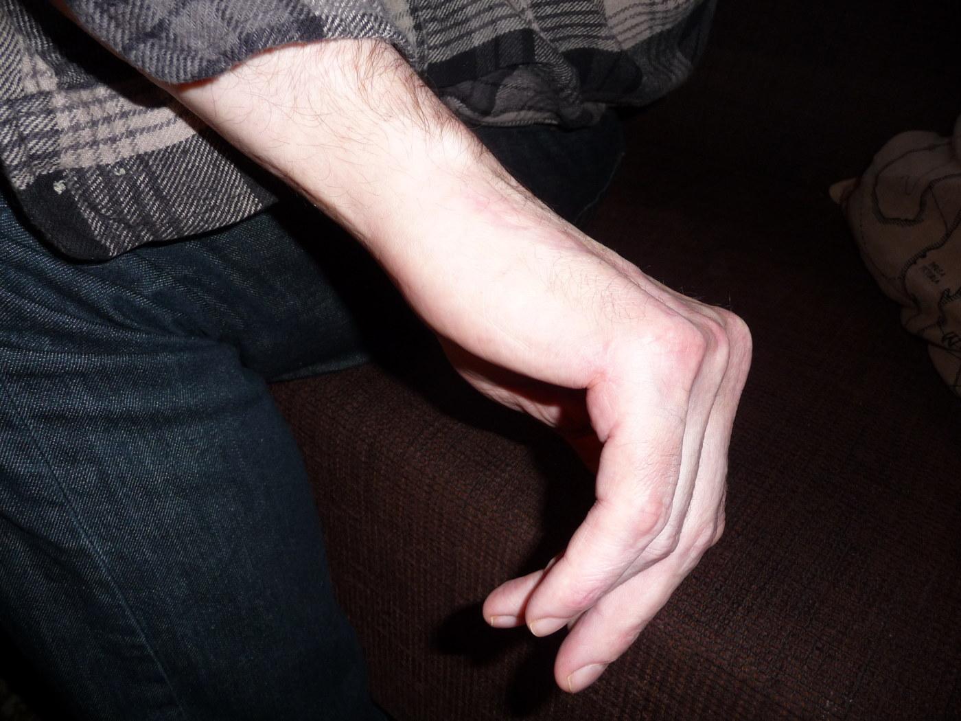 Elva fingrar och tolv tar