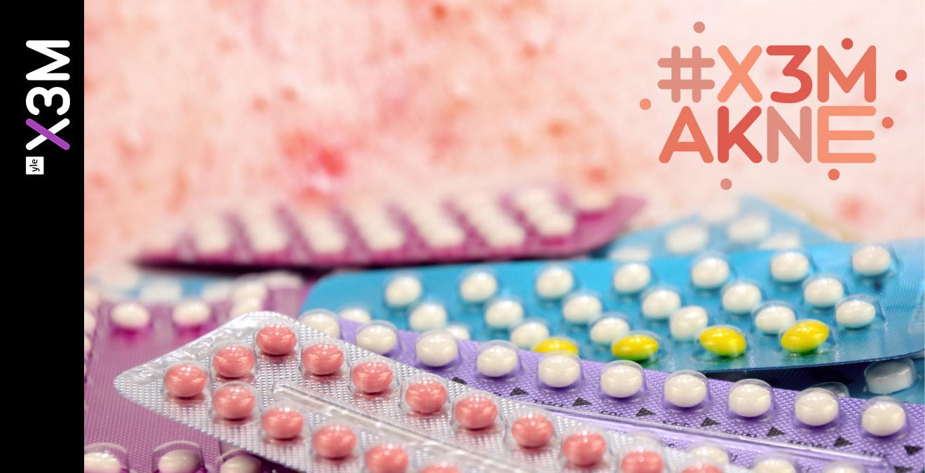 P-piller kan både stoppa och utlösa akne   X3M   svenska