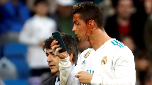 Blodig Ronaldo speglade sig i mobiltelefonen – efter att ha nickat ... 7f102b7d56e73