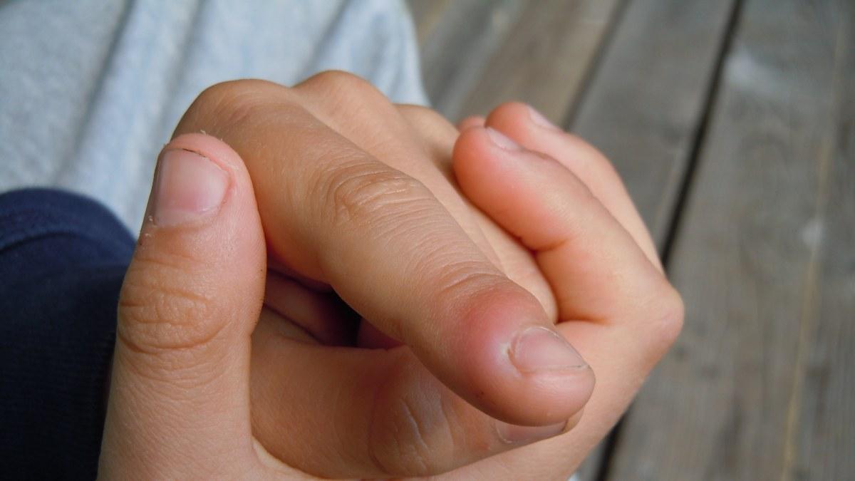 nageltrång finger tips