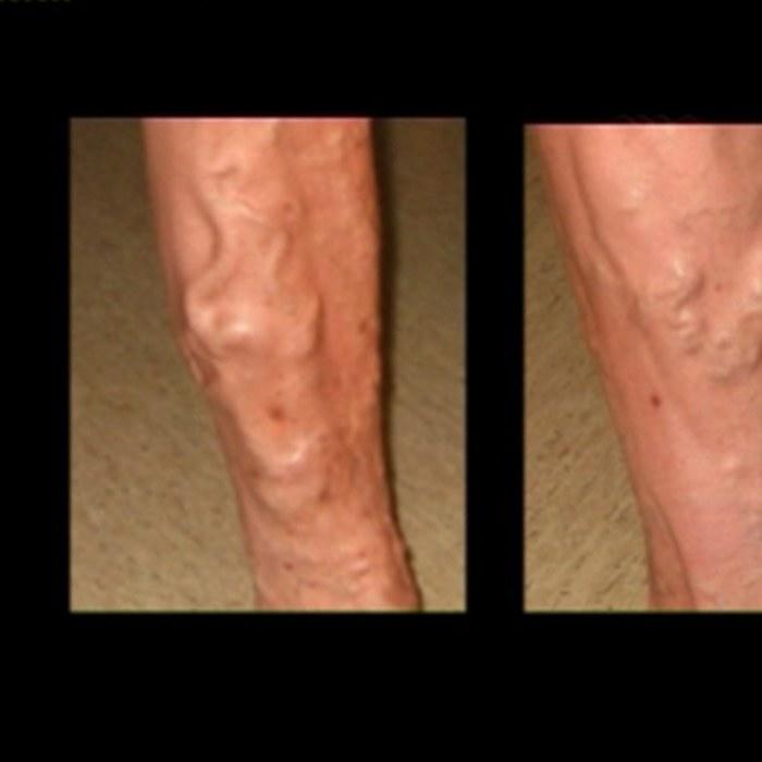inre åderbråck i benen