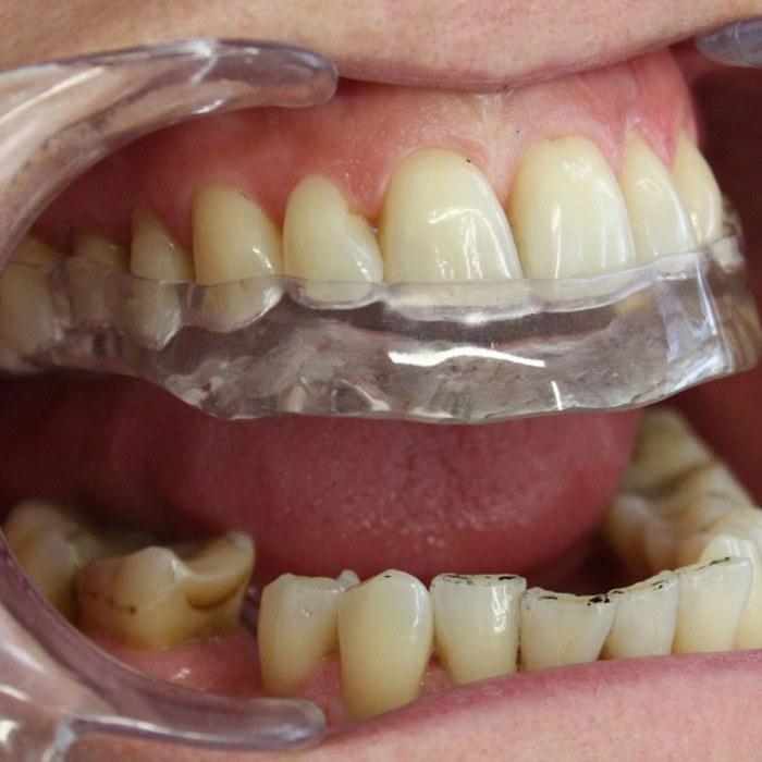 ont i tandköttet runt en tand