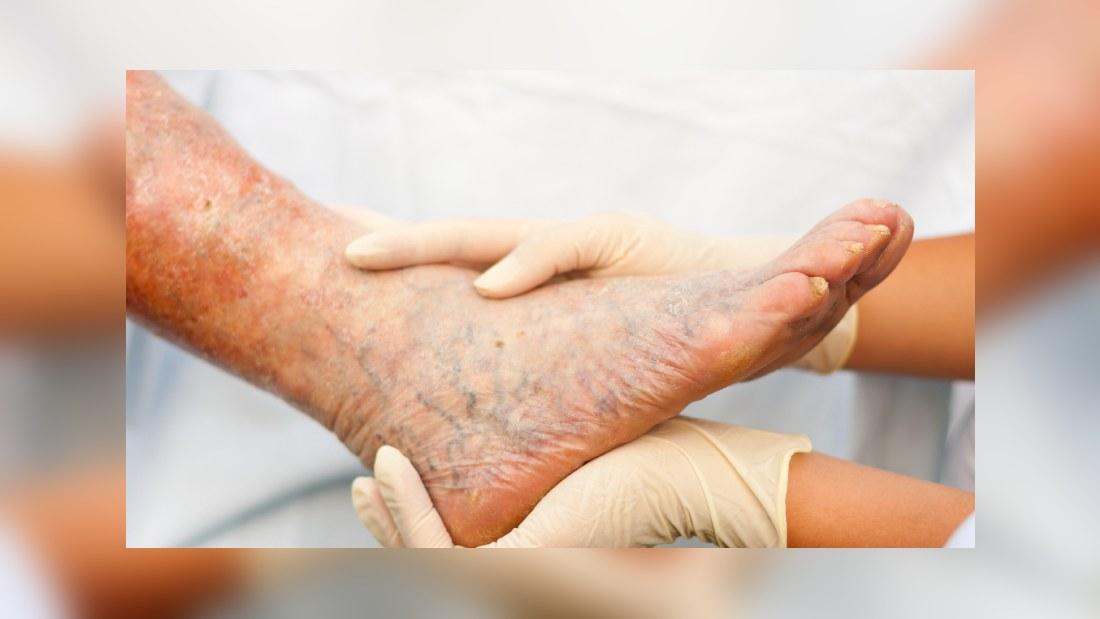 Tunn hud på benen