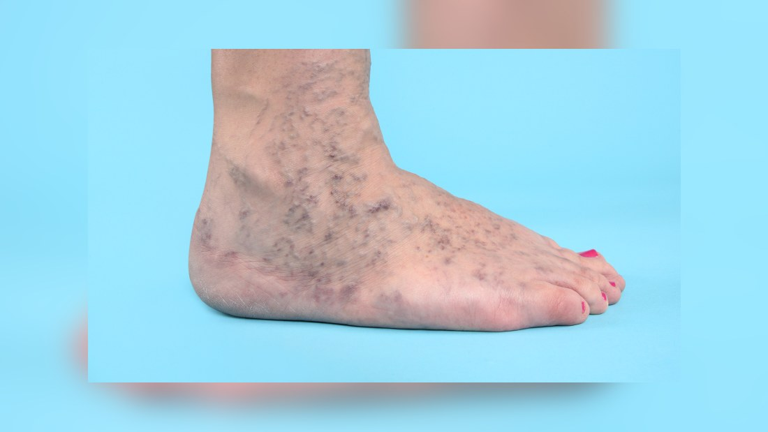 inflammation i blodkärlen i benen