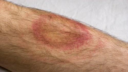 röd svullnad på benet