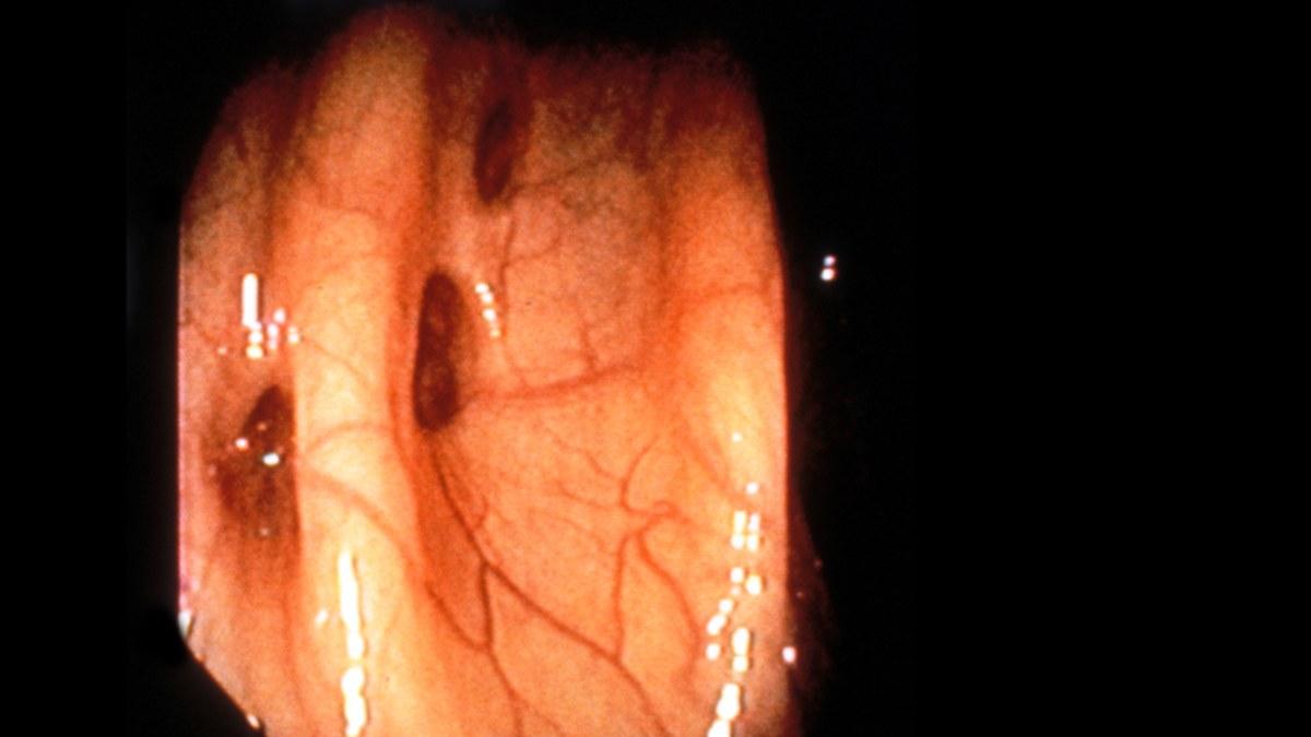 inflammerade tarmfickor kost